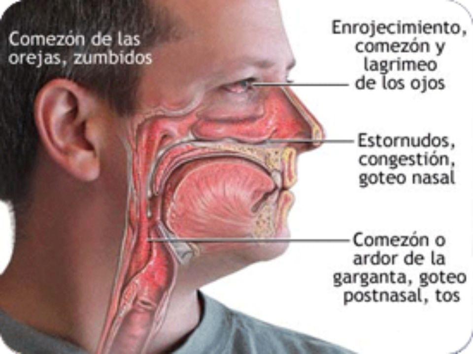 -Cutáneos: eczema de contacto, dermatitis atópica, urticaria y edema angioneural.