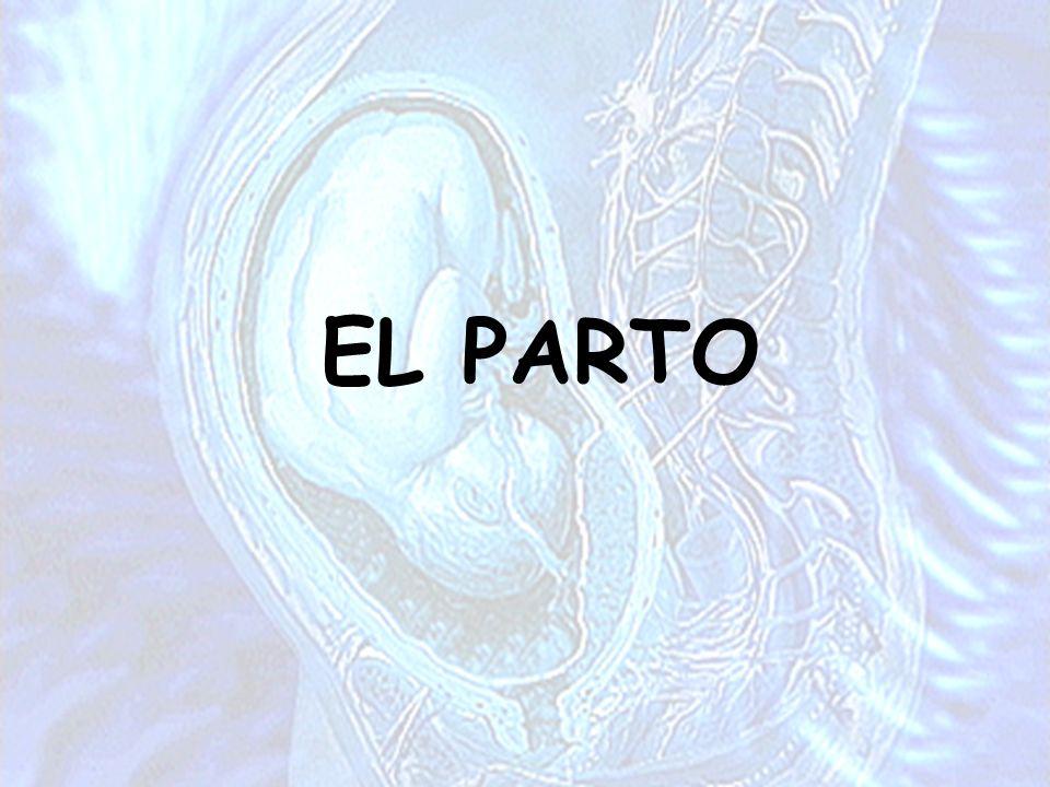 EL PARTO