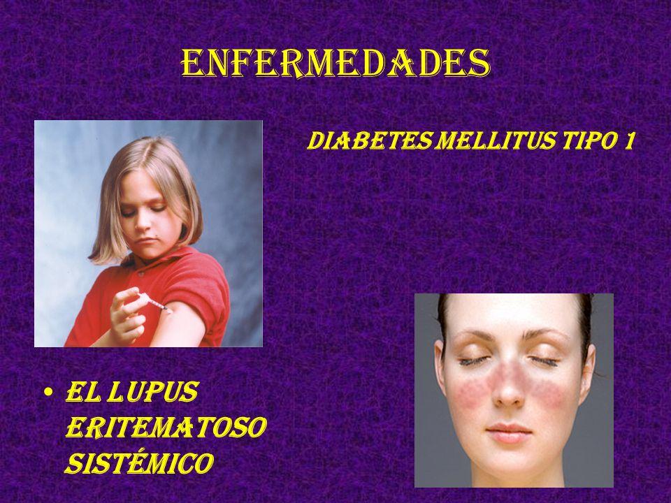 Enfermedades El lupus eritematoso sistémico Diabetes mellitus tipo 1