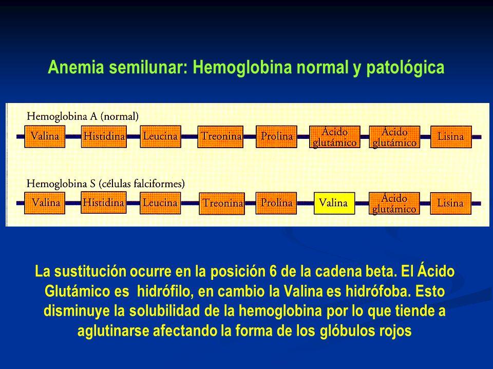 Anemia semilunar: Hemoglobina normal y patológica La sustitución ocurre en la posición 6 de la cadena beta. El Ácido Glutámico es hidrófilo, en cambio