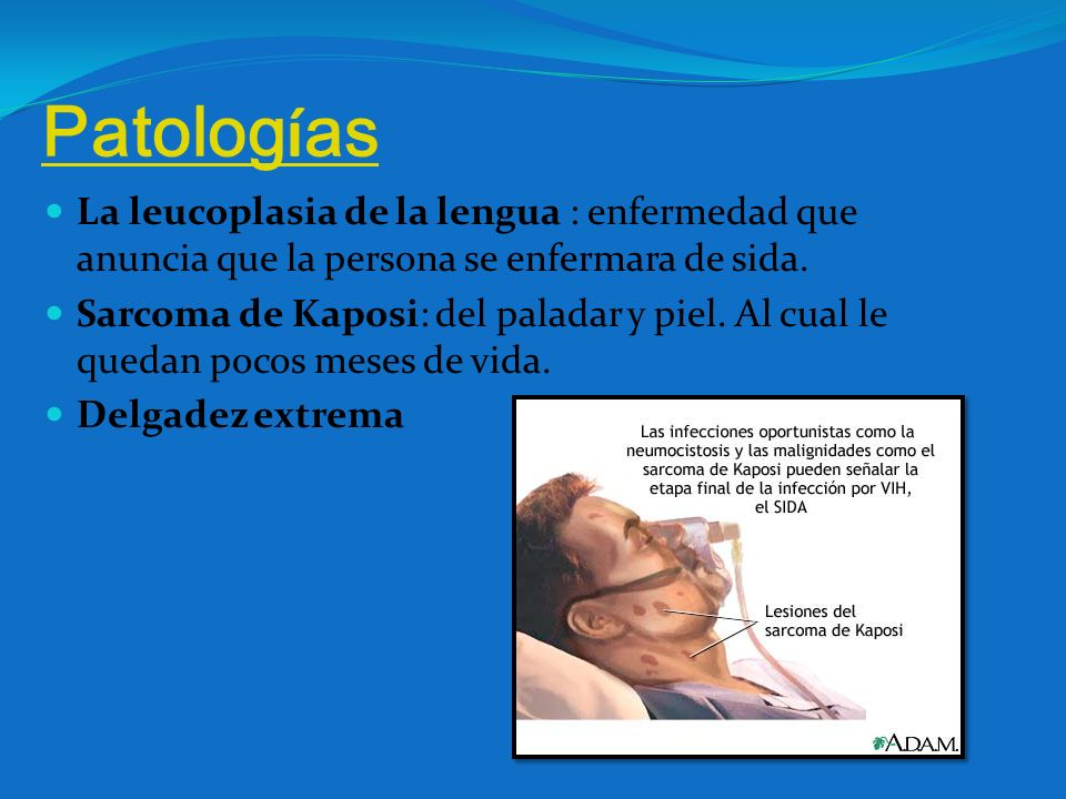 Patolog í as La leucoplasia de la lengua : enfermedad que anuncia que la persona se enfermara de sida. Sarcoma de Kaposi: del paladar y piel. Al cual