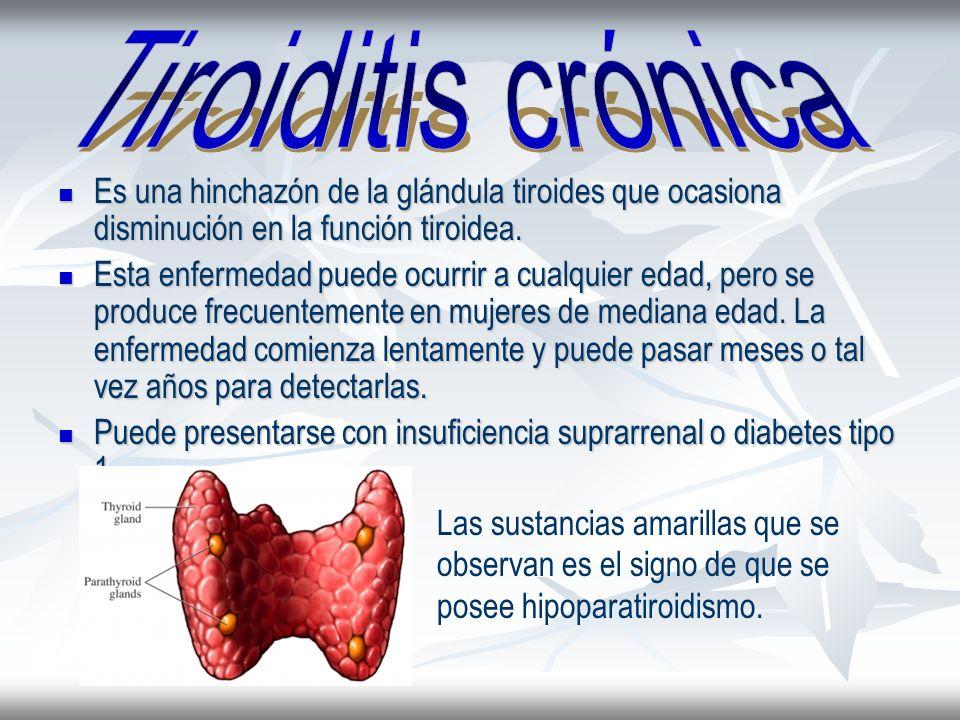Es una hinchazón de la glándula tiroides que ocasiona disminución en la función tiroidea. Es una hinchazón de la glándula tiroides que ocasiona dismin