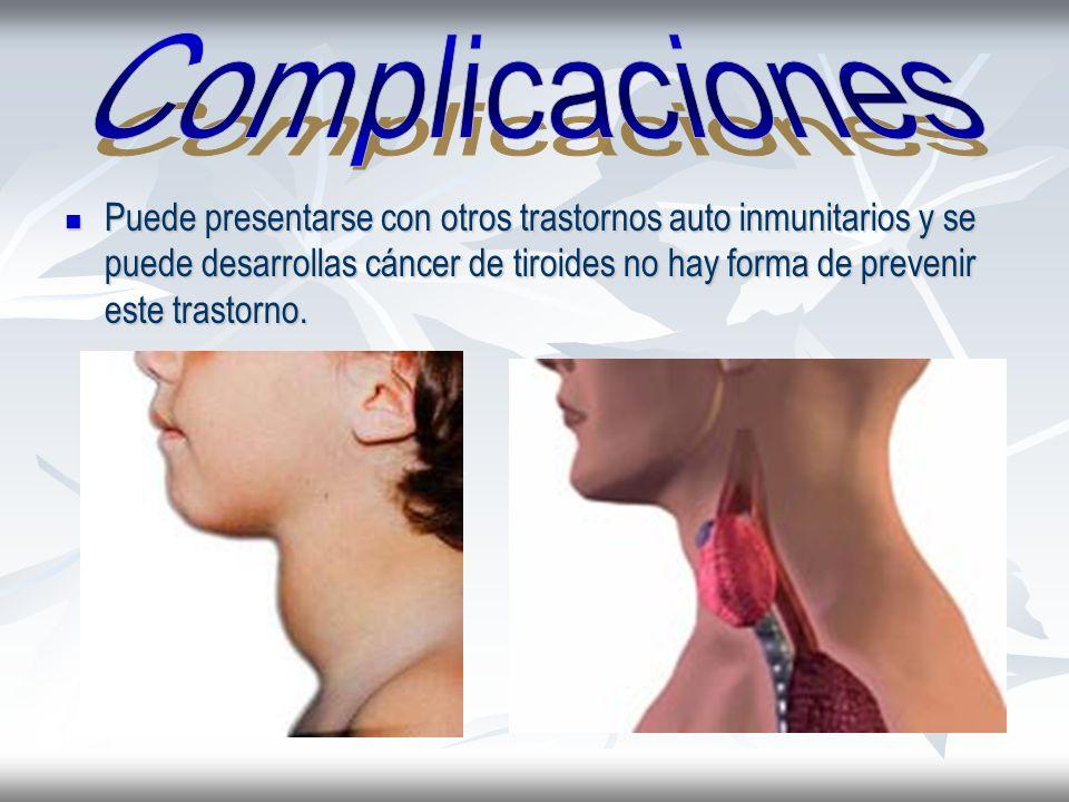 Puede presentarse con otros trastornos auto inmunitarios y se puede desarrollas cáncer de tiroides no hay forma de prevenir este trastorno. Puede pres