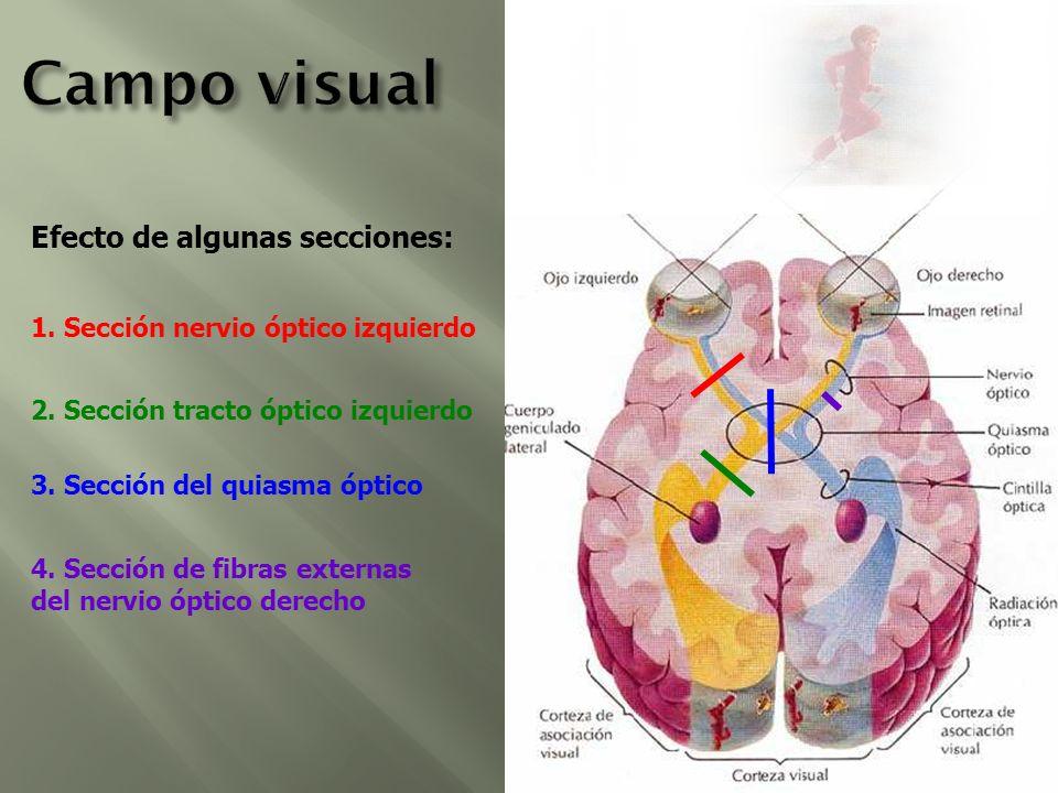 Efecto de algunas secciones: 1. Sección nervio óptico izquierdo 2. Sección tracto óptico izquierdo 3. Sección del quiasma óptico 4. Sección de fibras