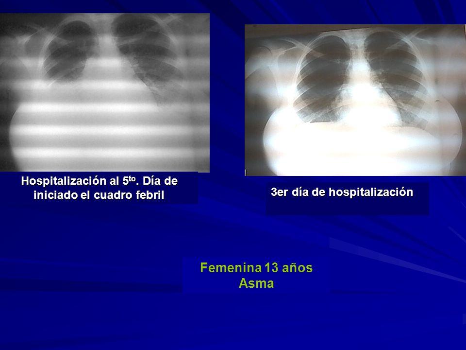 Hospitalización al 5 to. Día de iniciado el cuadro febril 3er día de hospitalización Femenina 13 años Asma