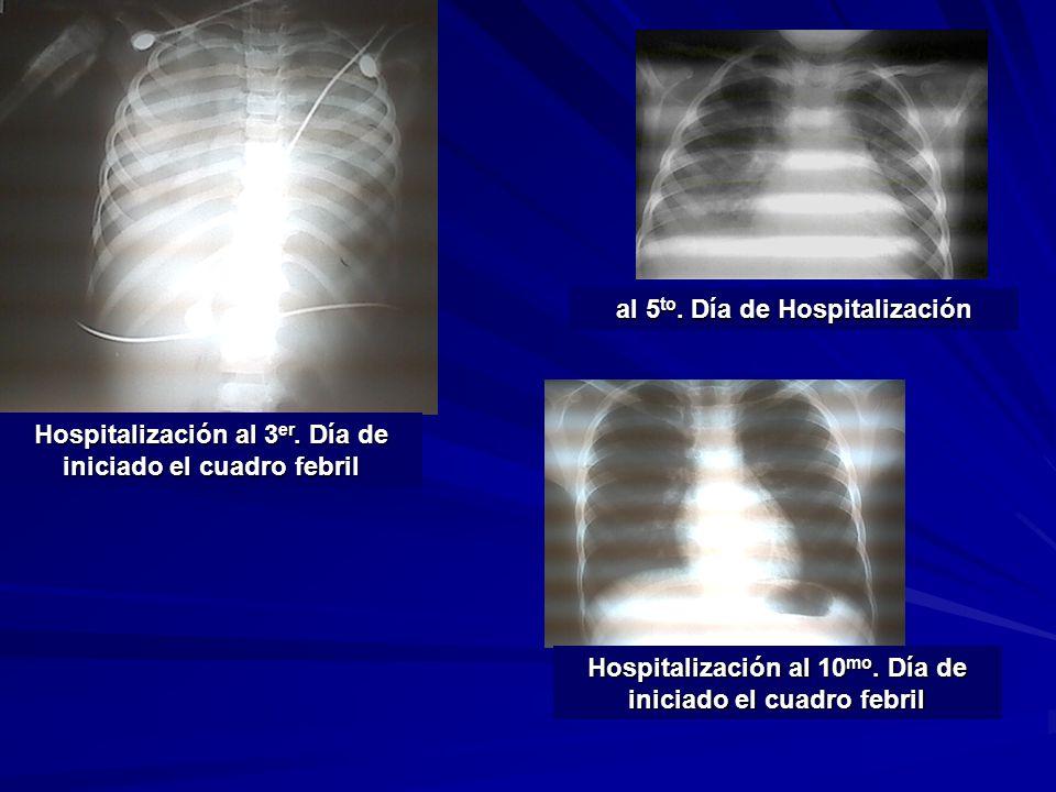 Hospitalización al 3 er. Día de iniciado el cuadro febril al 5 to. Día de Hospitalización Hospitalización al 10 mo. Día de iniciado el cuadro febril