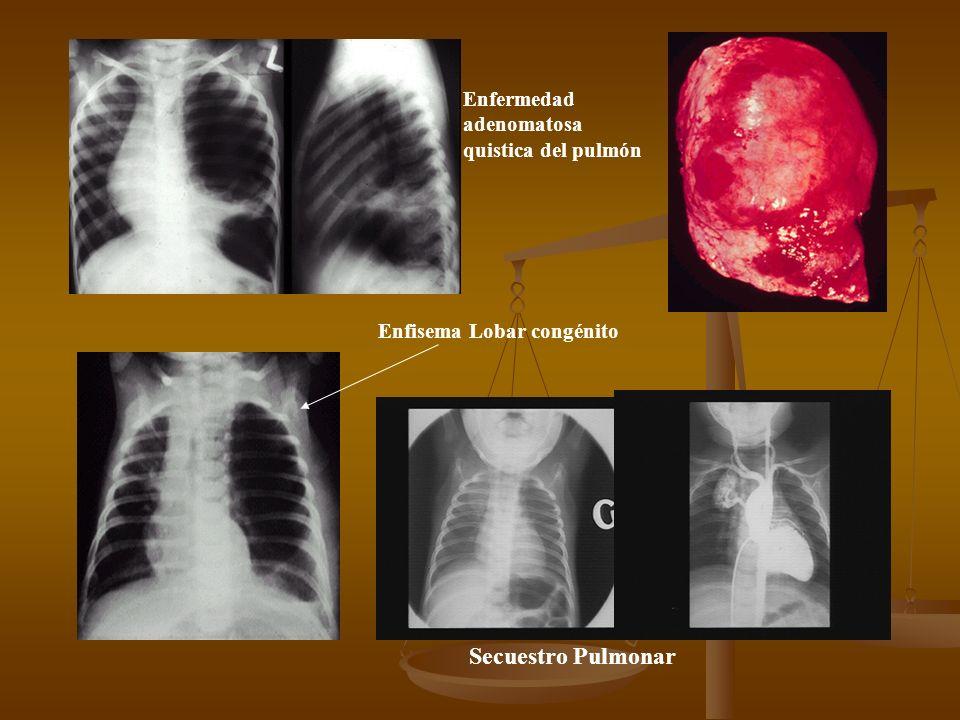 Avances En Antibióticos Flouroquinolonas Respiratorias Flouroquinolonas Respiratorias Nuevos Macrolidos Nuevos Macrolidos Cefalosporinas de 3ª y 4ª ge