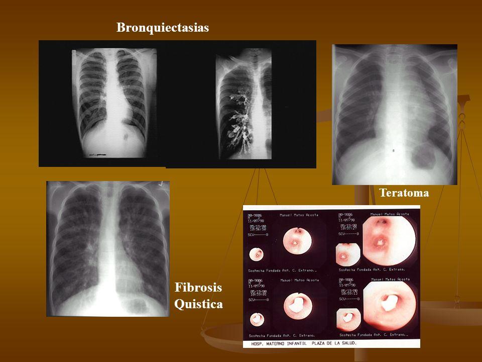 Enfermedad adenomatosa quistica del pulmón Enfisema Lobar congénito Secuestro Pulmonar
