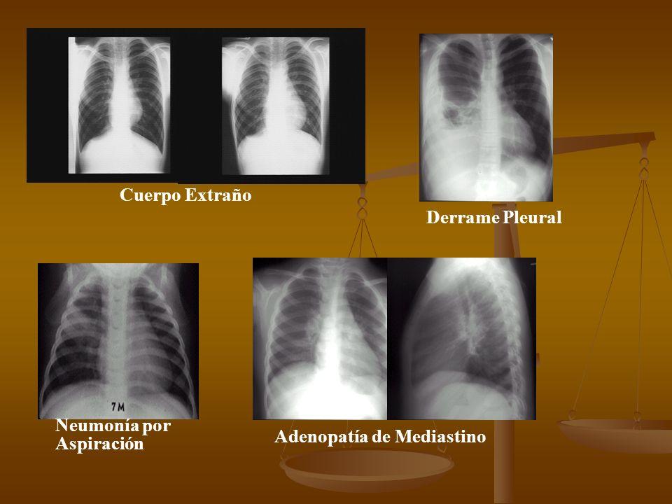 Bronquiectasias Fibrosis Quistica Teratoma