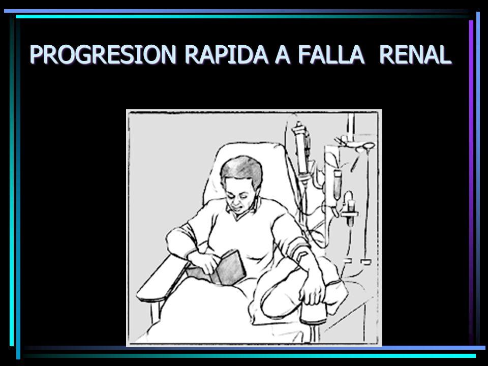 PROGRESION RAPIDA A FALLA RENAL