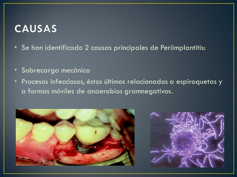 Se han identificado 2 causas principales de Periimplantitis: Sobrecarga mecánica Procesos infecciosos, éstos últimos relacionados a espiroquetas y a f