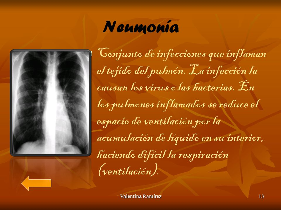 Neumonía Conjunto de infecciones que inflaman el tejido del pulmón. La infección la causan los virus o las bacterias. En los pulmones inflamados se re