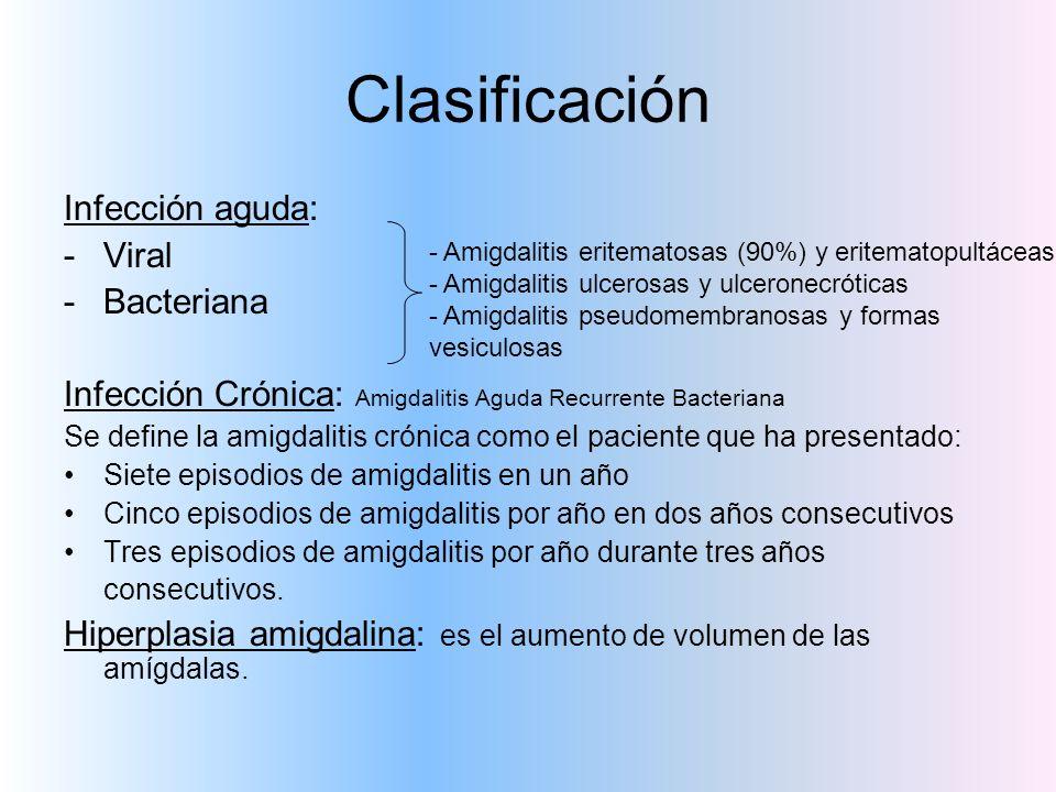 Clasificación Infección aguda: -Viral -Bacteriana Infección Crónica: Amigdalitis Aguda Recurrente Bacteriana Se define la amigdalitis crónica como el