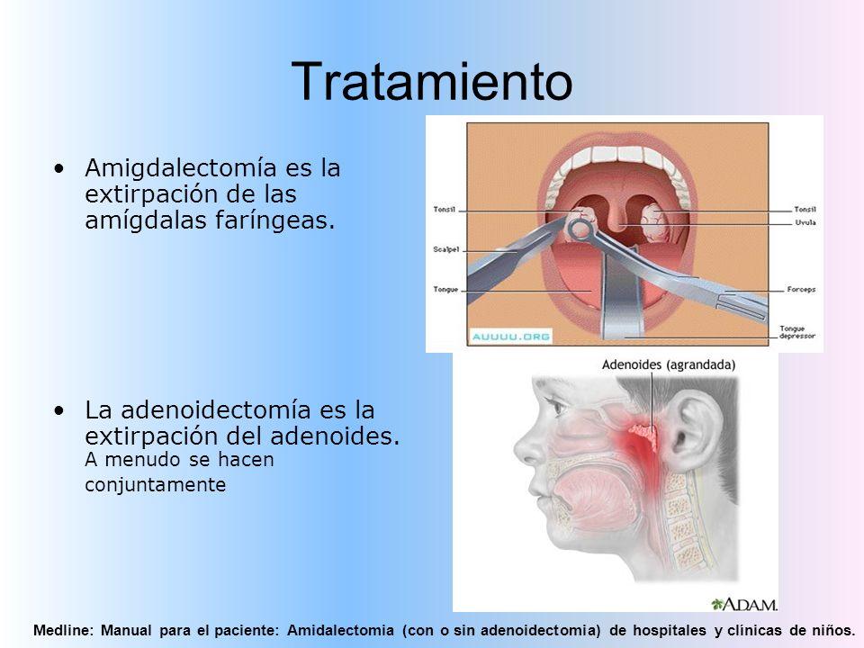 Tratamiento Amigdalectomía es la extirpación de las amígdalas faríngeas. La adenoidectomía es la extirpación del adenoides. A menudo se hacen conjunta