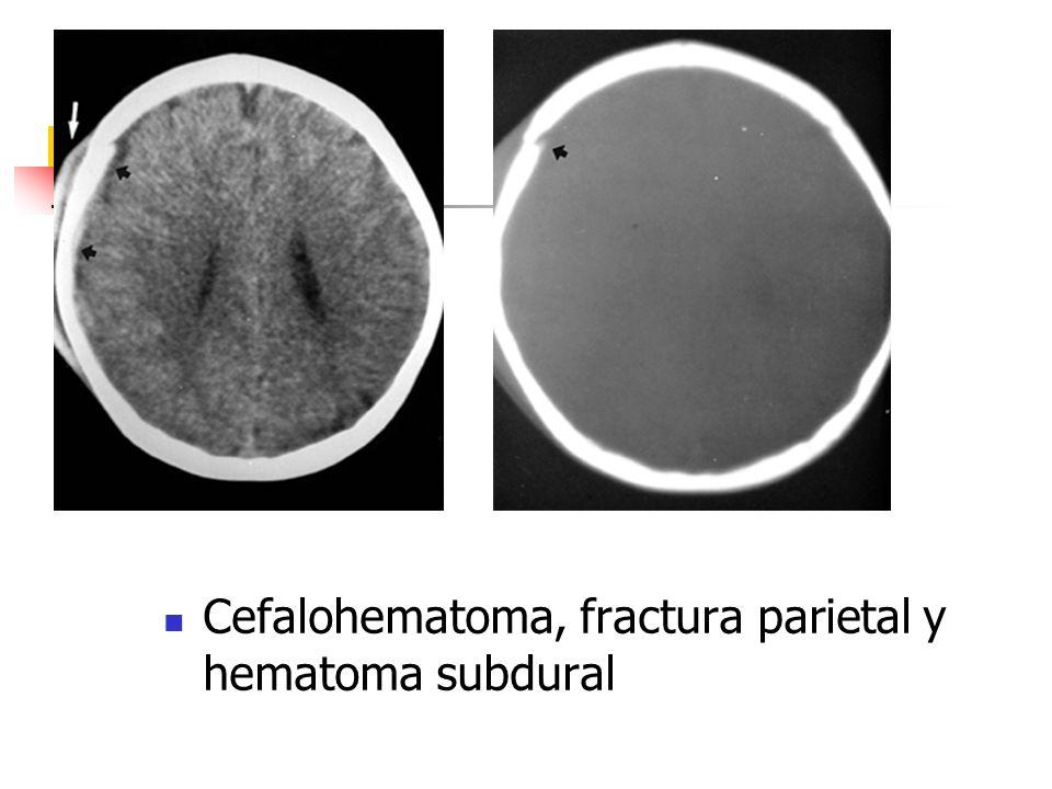 Cefalohematoma, fractura parietal y hematoma subdural