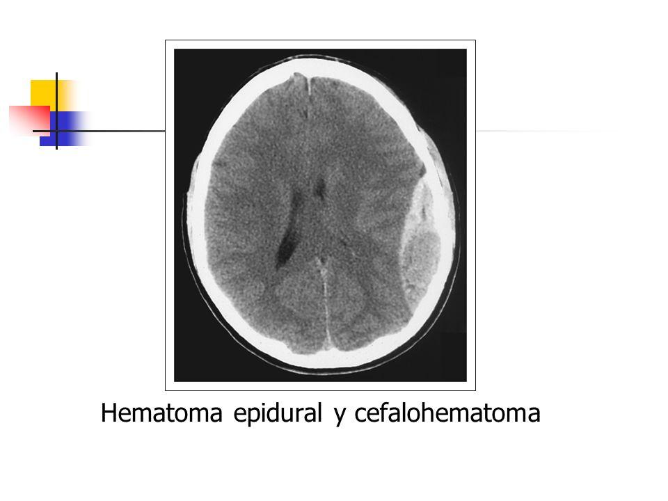 Hematoma epidural y cefalohematoma
