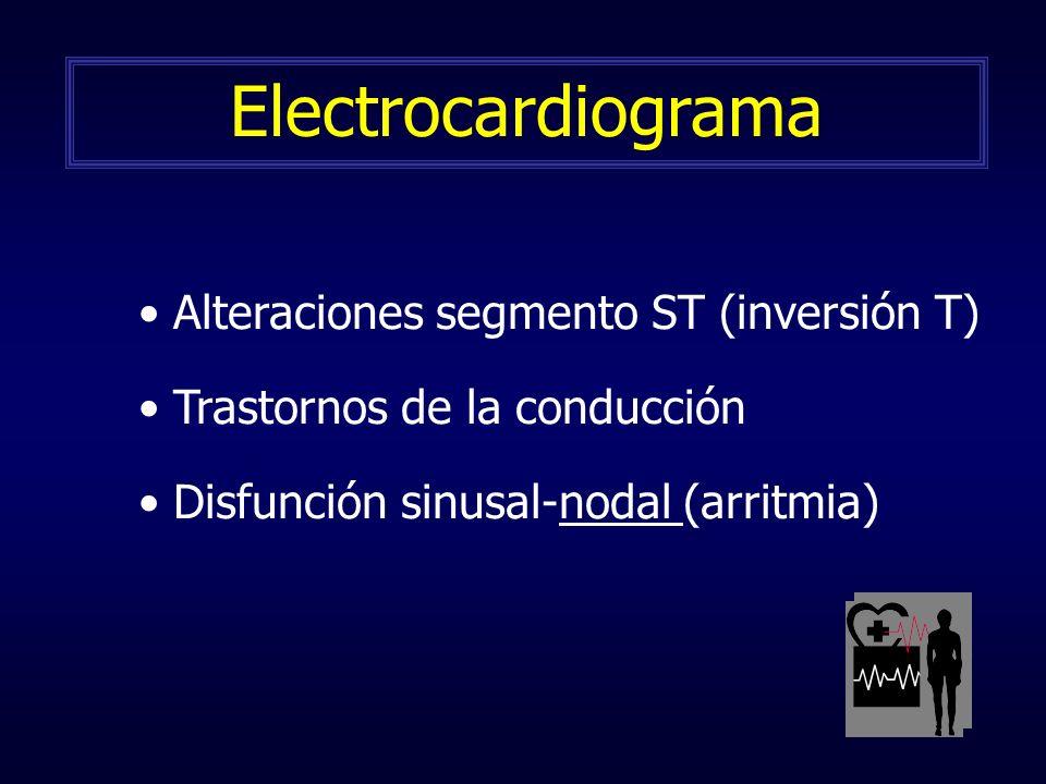 Alteraciones segmento ST (inversión T) Trastornos de la conducción Disfunción sinusal-nodal (arritmia) Electrocardiograma