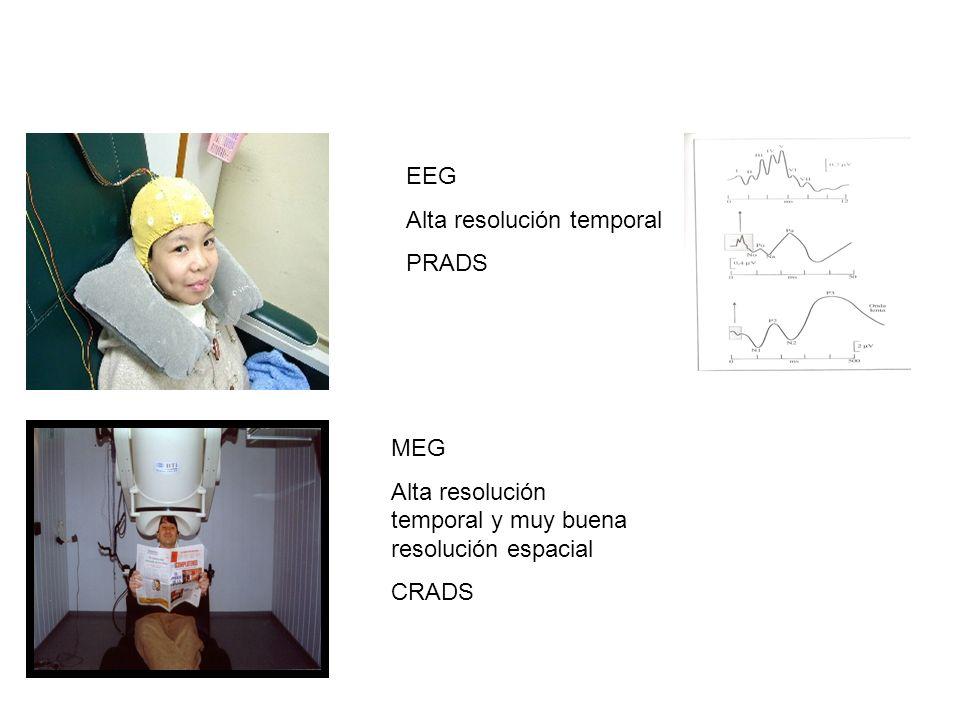 EEG Alta resolución temporal PRADS MEG Alta resolución temporal y muy buena resolución espacial CRADS