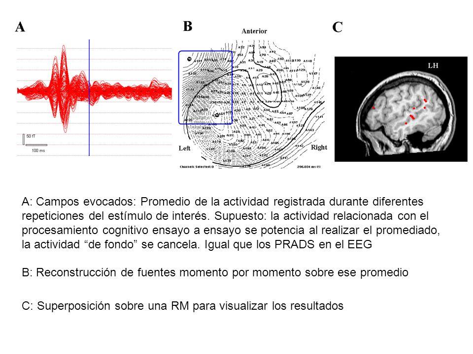 TDAH Tésis doctoral: Neurofisiología del trastorno por déficit de atención con hiperactividad Centro de Magnetoencefalografía Dr.