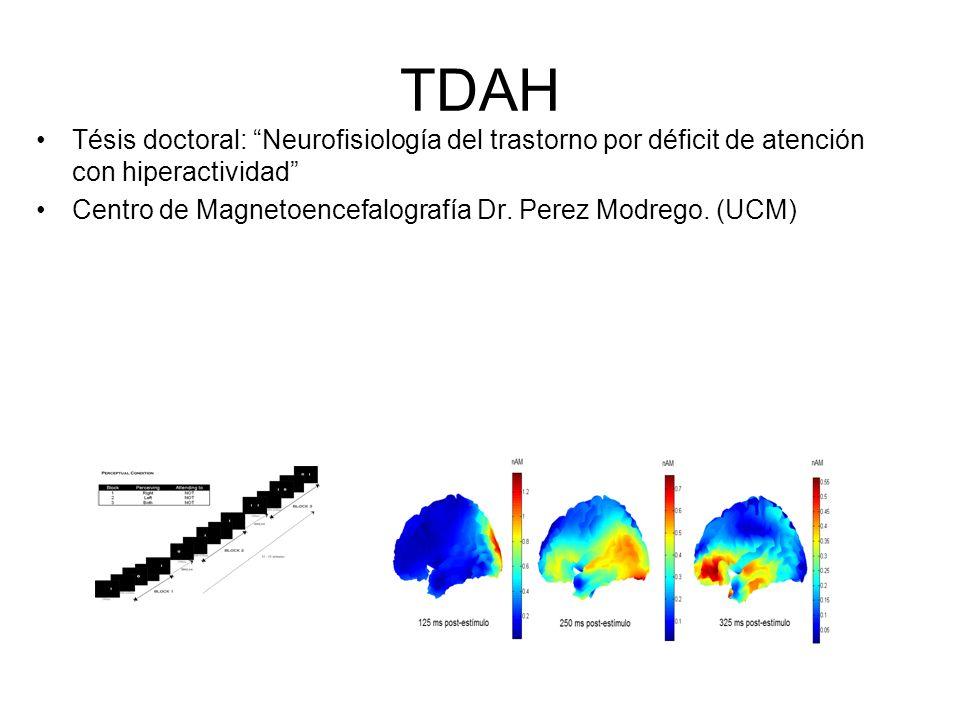 TDAH Tésis doctoral: Neurofisiología del trastorno por déficit de atención con hiperactividad Centro de Magnetoencefalografía Dr. Perez Modrego. (UCM)
