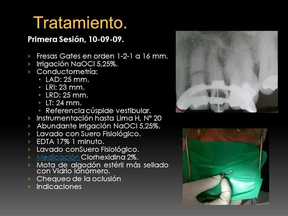 Primera Sesión, 10-09-09. Fresas Gates en orden 1-2-1 a 16 mm. Irrigación NaOCl 5,25%. Conductometría: LAD: 25 mm. LRI: 23 mm. LRD: 25 mm. LT: 24 mm.