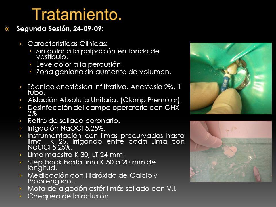 Segunda Sesión, 24-09-09: Características Clínicas: Sin dolor a la palpación en fondo de vestíbulo. Leve dolor a la percusión. Zona geniana sin aument