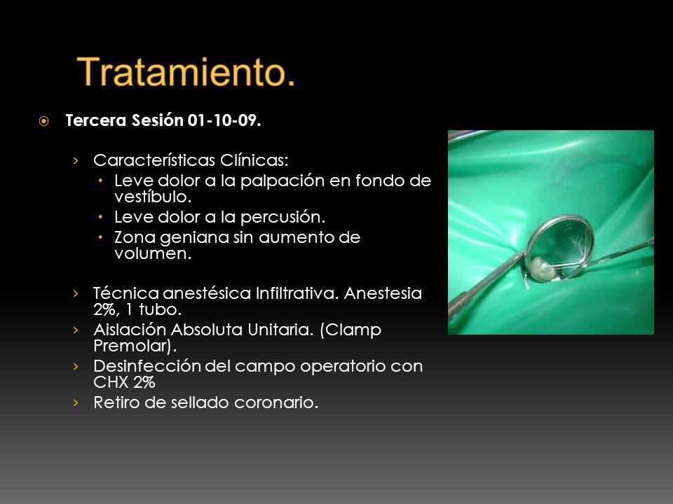 Tercera Sesión 01-10-09. Características Clínicas: Leve dolor a la palpación en fondo de vestíbulo. Leve dolor a la percusión. Zona geniana sin aument