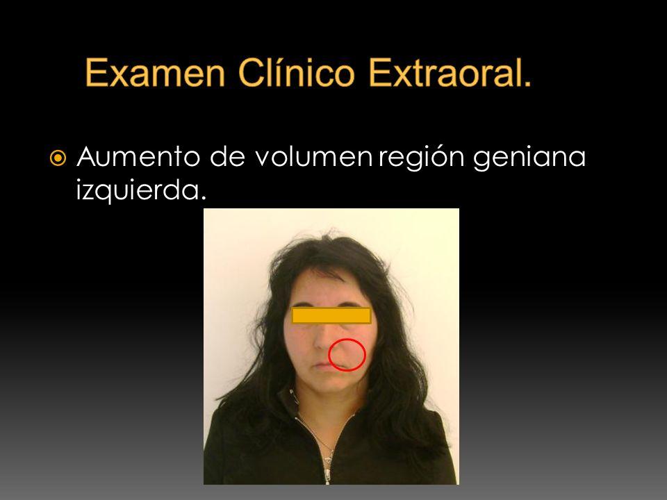 Caries Penetrante.Oclusión del diente normal. Región Vestibular: Dolor a la palpación.