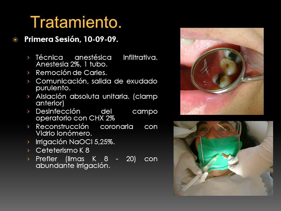 Primera Sesión, 10-09-09. Técnica anestésica Infiltrativa. Anestesia 2%, 1 tubo. Remoción de Caries. Comunicación, salida de exudado purulento. Aislac