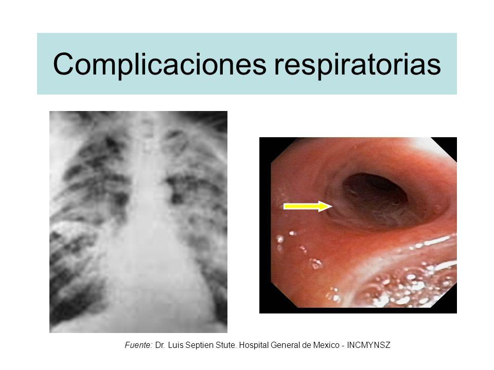 Complicaciones respiratorias Fuente: Dr. Luis Septien Stute. Hospital General de Mexico - INCMYNSZ