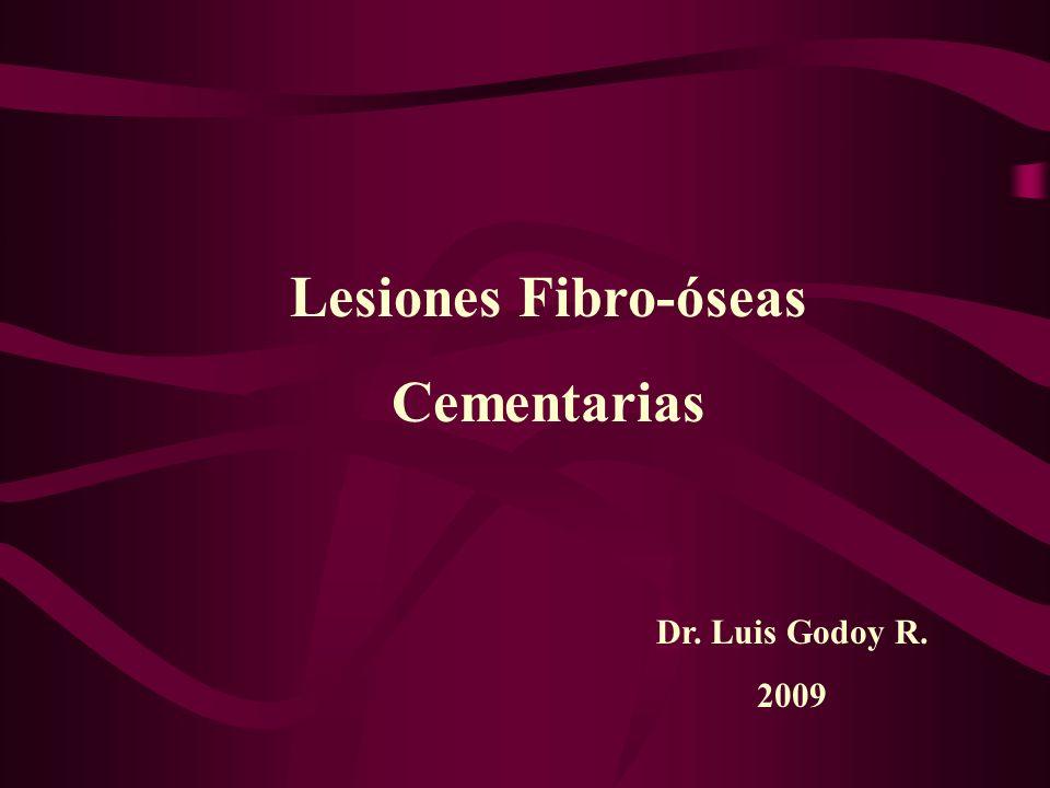 Lesiones Fibro-óseas Cementarias Conjunto de lesiones que se caracterizan por el reemplazo del hueso normal por tejido fibroso con variable cantidad de tejido mineralizado que puede ser hueso, cemento o ambos.