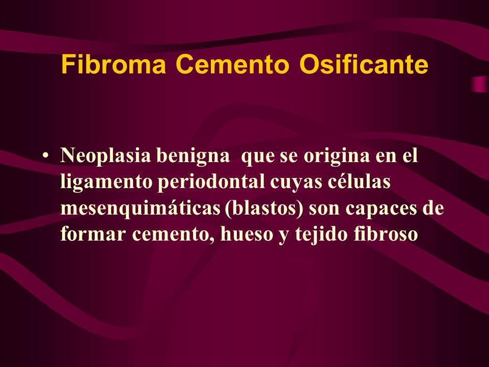 Fibroma Cemento Osificante Neoplasia benigna que se origina en el ligamento periodontal cuyas células mesenquimáticas (blastos) son capaces de formar