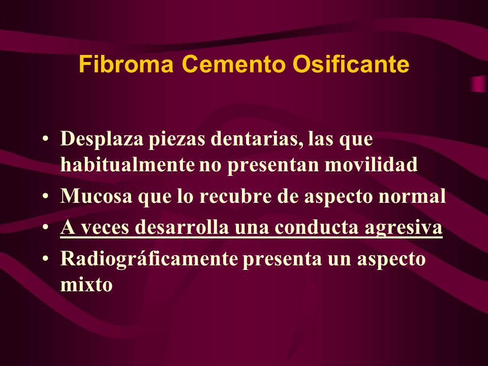 Fibroma Cemento Osificante Desplaza piezas dentarias, las que habitualmente no presentan movilidad Mucosa que lo recubre de aspecto normal A veces des