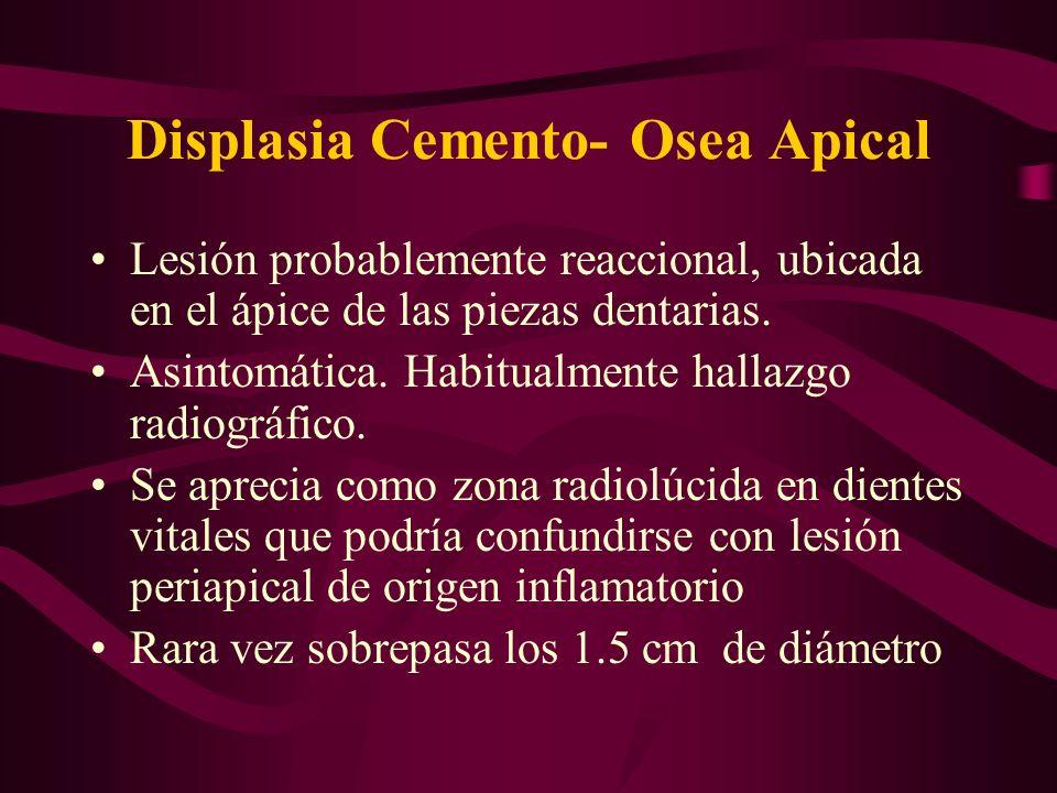 Displasia Cemento- Osea Apical Lesión probablemente reaccional, ubicada en el ápice de las piezas dentarias. Asintomática. Habitualmente hallazgo radi