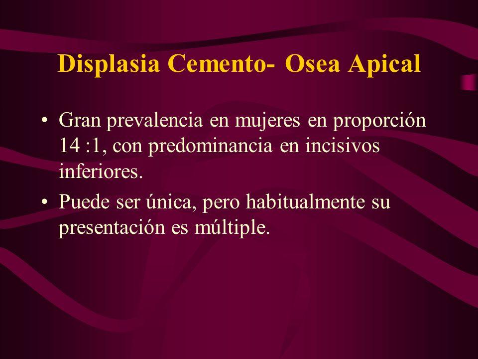 Displasia Cemento- Osea Apical Gran prevalencia en mujeres en proporción 14 :1, con predominancia en incisivos inferiores. Puede ser única, pero habit