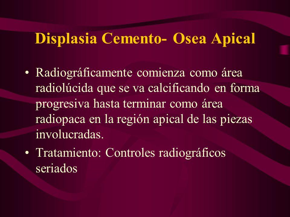 Displasia Cemento- Osea Apical Radiográficamente comienza como área radiolúcida que se va calcificando en forma progresiva hasta terminar como área ra