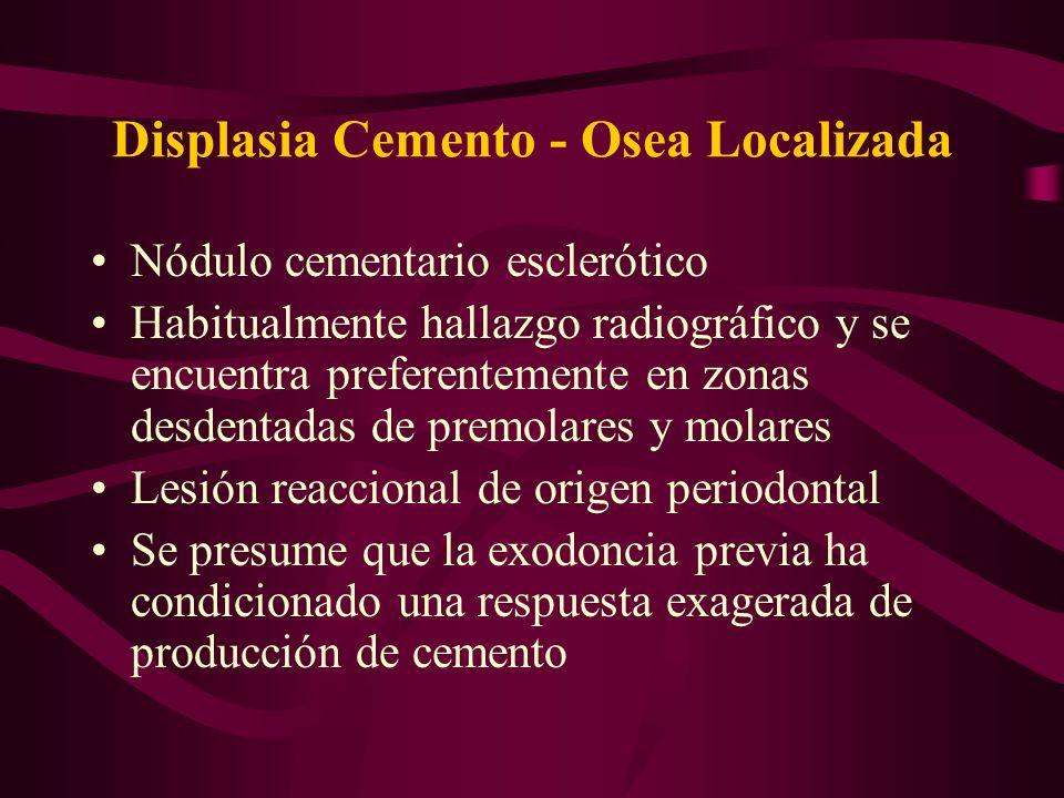 Displasia Cemento - Osea Localizada Nódulo cementario esclerótico Habitualmente hallazgo radiográfico y se encuentra preferentemente en zonas desdenta