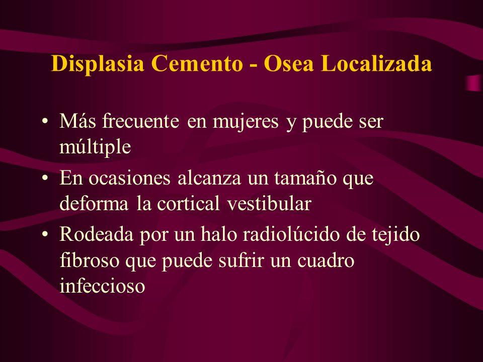 Displasia Cemento - Osea Localizada Más frecuente en mujeres y puede ser múltiple En ocasiones alcanza un tamaño que deforma la cortical vestibular Ro
