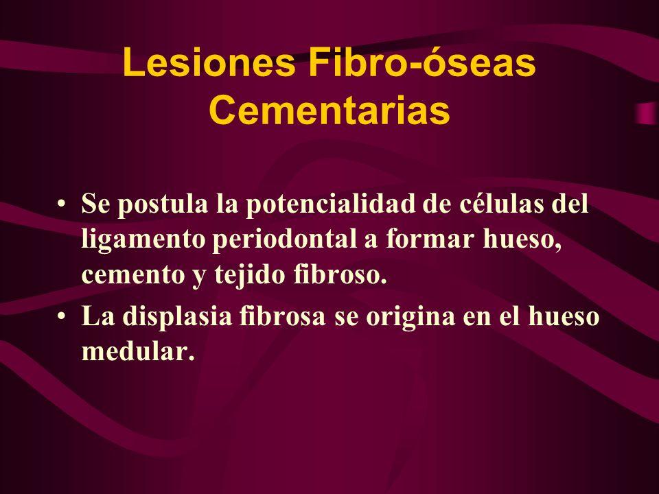 Lesiones Fibro-óseas Cementarias Se postula la potencialidad de células del ligamento periodontal a formar hueso, cemento y tejido fibroso. La displas