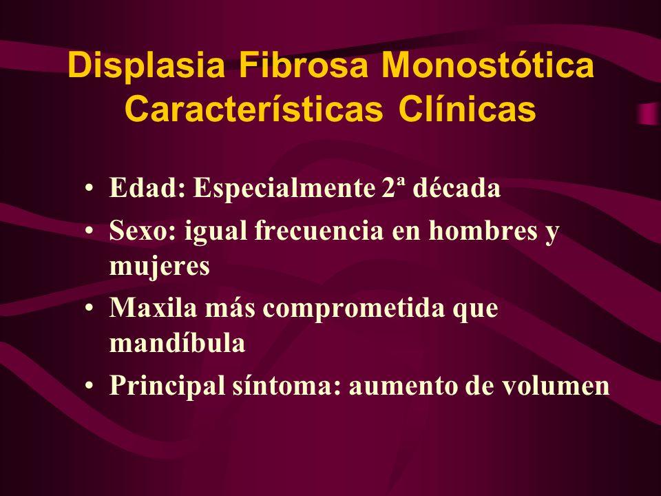 Displasia Fibrosa Monostótica Características Clínicas Ubicación : especialmente región de premolares y molares Tiende a estabilizarse en edad adulta Sin límites precisos, se pierde insensiblemente con el hueso normal