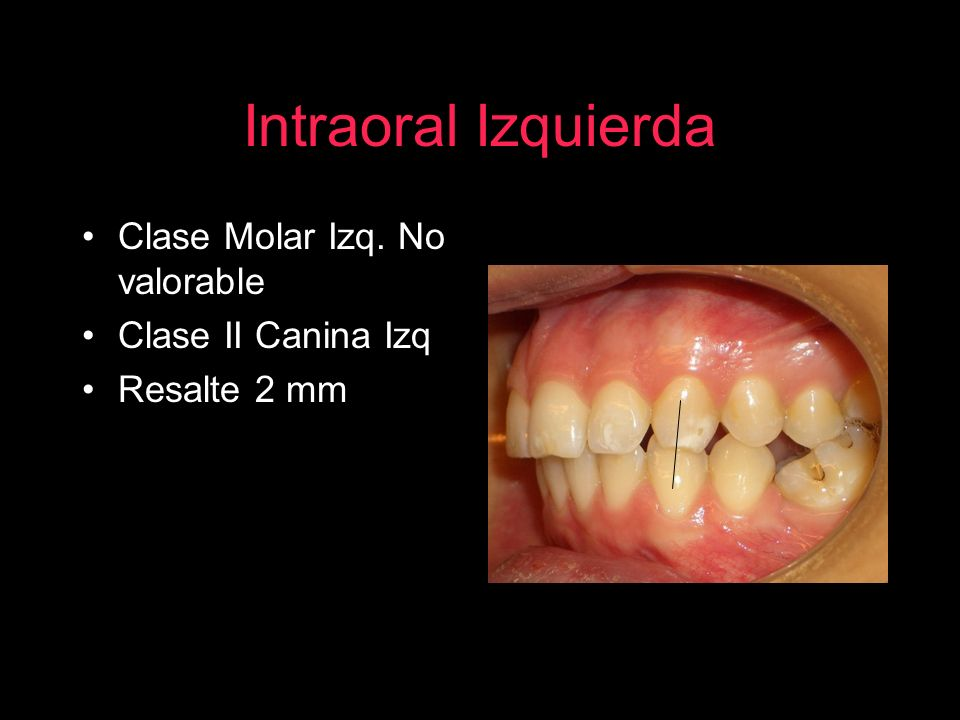 Intraoral Izquierda Clase Molar Izq. No valorable Clase II Canina Izq Resalte 2 mm