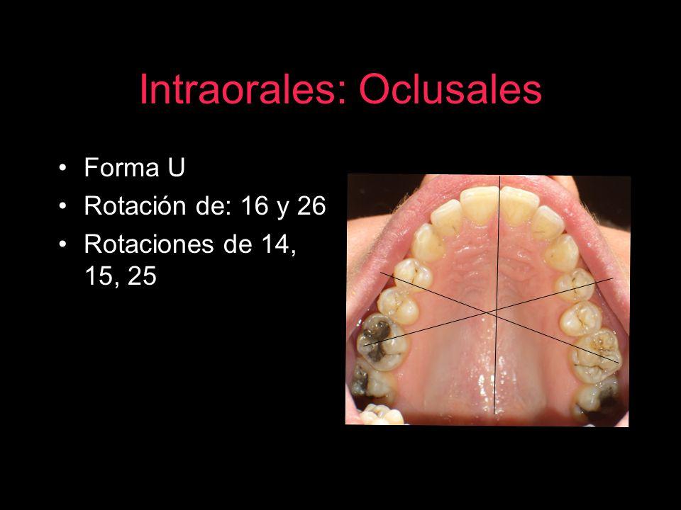 Intraorales: Oclusales Forma U Rotación de: 16 y 26 Rotaciones de 14, 15, 25
