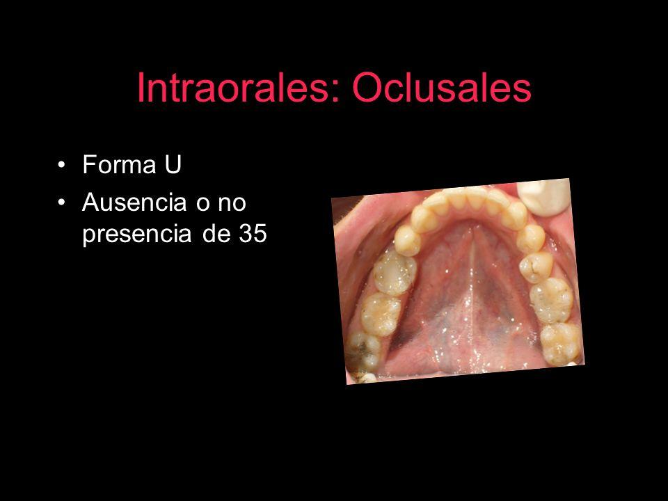 Intraorales: Oclusales Forma U Ausencia o no presencia de 35