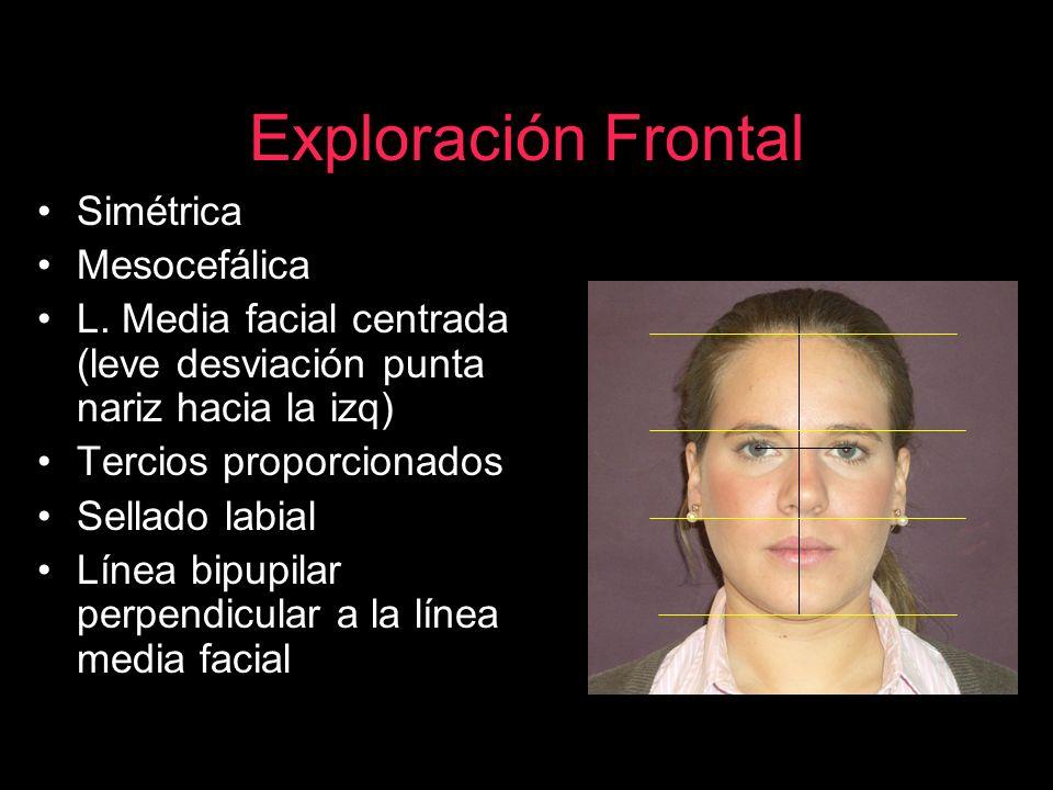 Exploración Frontal Simétrica Mesocefálica L. Media facial centrada (leve desviación punta nariz hacia la izq) Tercios proporcionados Sellado labial L