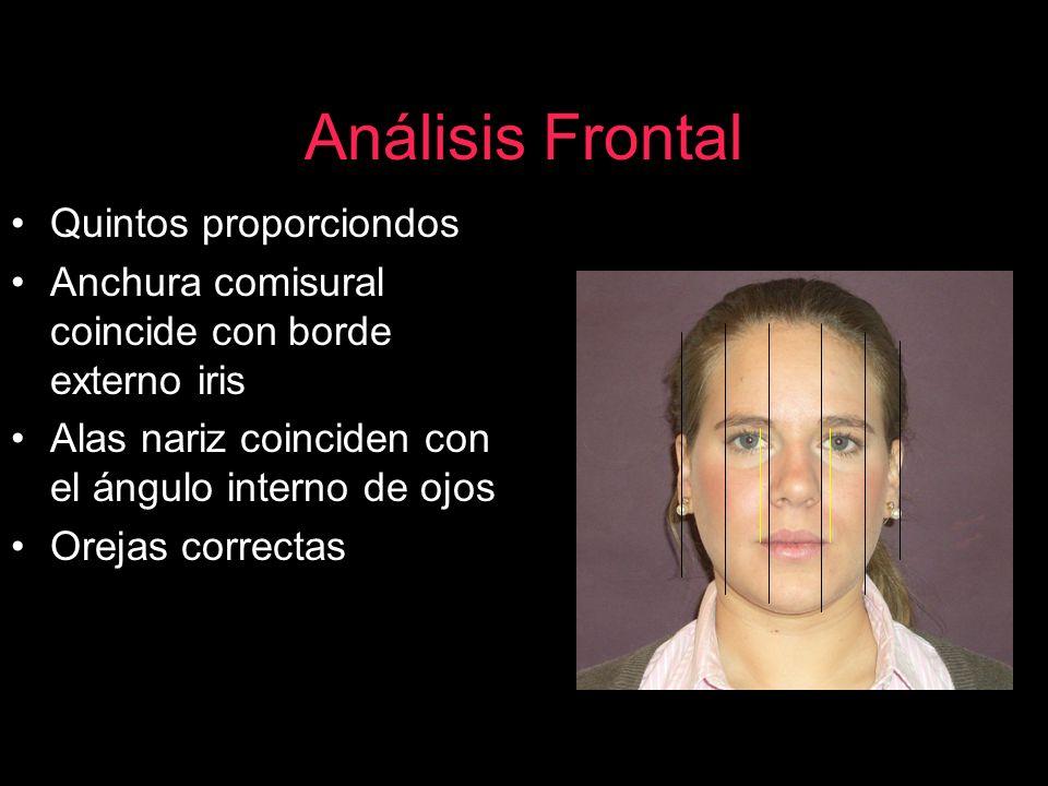 Análisis Frontal Quintos proporciondos Anchura comisural coincide con borde externo iris Alas nariz coinciden con el ángulo interno de ojos Orejas cor