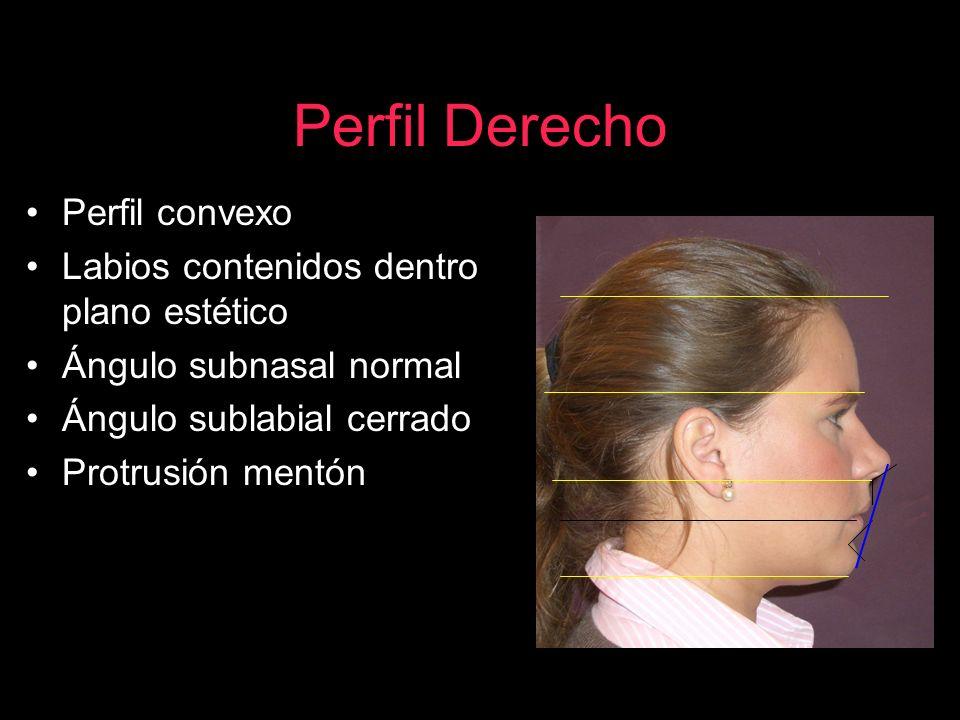 Perfil Derecho Perfil convexo Labios contenidos dentro plano estético Ángulo subnasal normal Ángulo sublabial cerrado Protrusión mentón