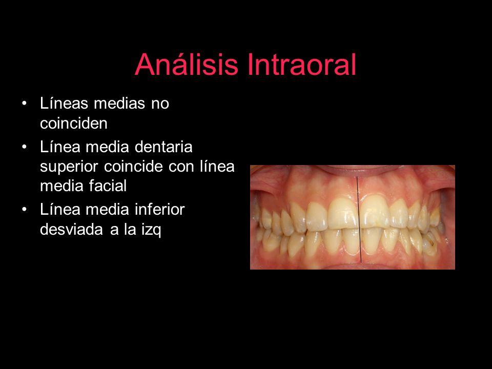 Análisis Intraoral Líneas medias no coinciden Línea media dentaria superior coincide con línea media facial Línea media inferior desviada a la izq