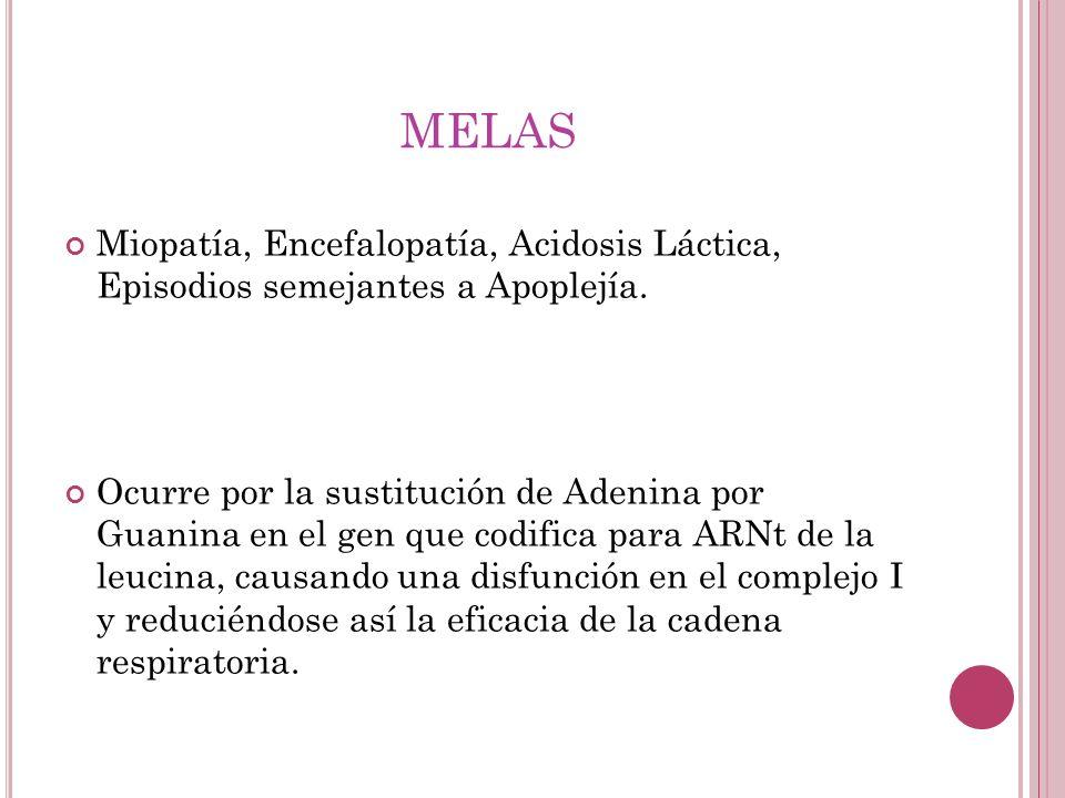 MELAS Miopatía, Encefalopatía, Acidosis Láctica, Episodios semejantes a Apoplejía. Ocurre por la sustitución de Adenina por Guanina en el gen que codi
