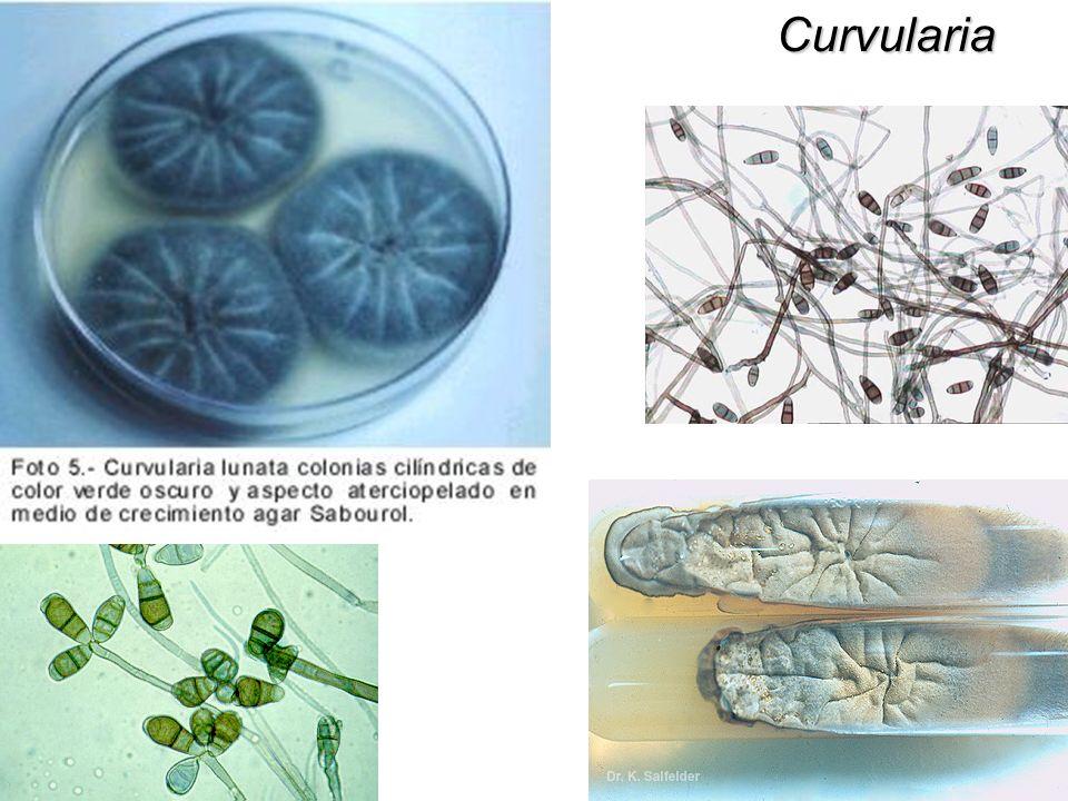 Curvularia