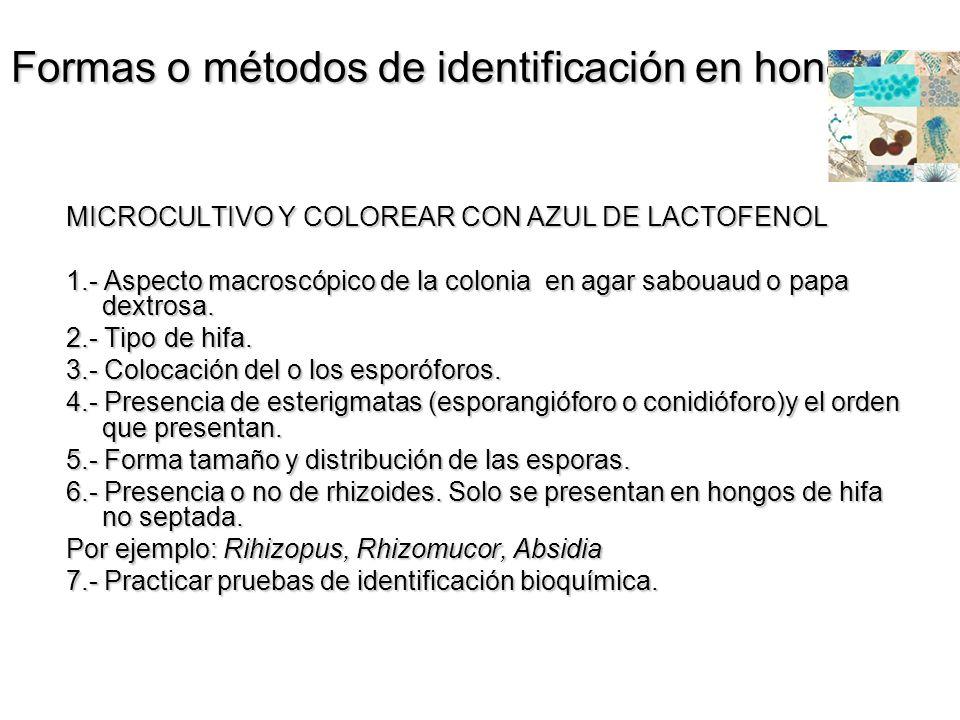 Formas o métodos de identificación en hongos MICROCULTIVO Y COLOREAR CON AZUL DE LACTOFENOL 1.- Aspecto macroscópico de la colonia en agar sabouaud o
